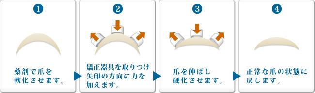 nailfix_chart.jpg